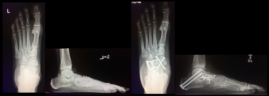 Single lateral incision for a triple arthrodesis | The Foot and