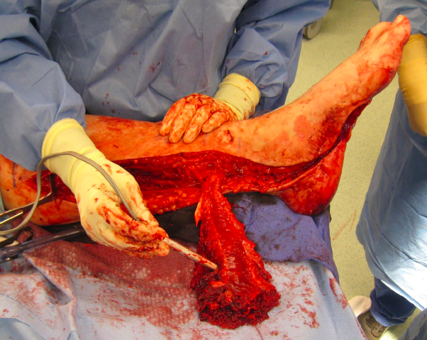 Medial Hemisoleus Muscle Flap The Foot And Ankle Online