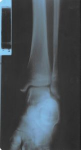 C:\Users\kingsepr\Downloads\Ankle XR2 - Left.jpg