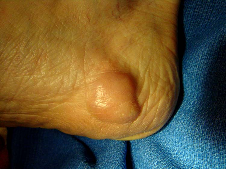 Metastasis The Foot And Ankle Online Journal